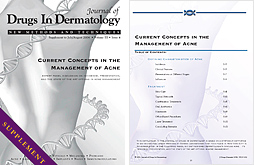 Current Concepts in the Management of Acne