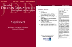 Managing Acne With Adapalene